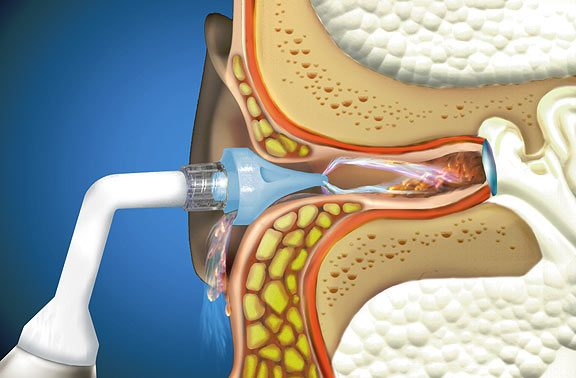Repair Hearing Loss with Microsuction Wax Removal
